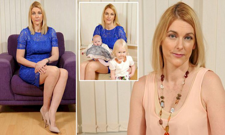A mom from England was so emotionally affected by venephobia, a fear of veins, begged doctor to amputate her legs despite there being nothing wrong with them.
